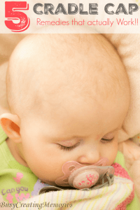 Cradle Cap Remedies that actually work with fast results!